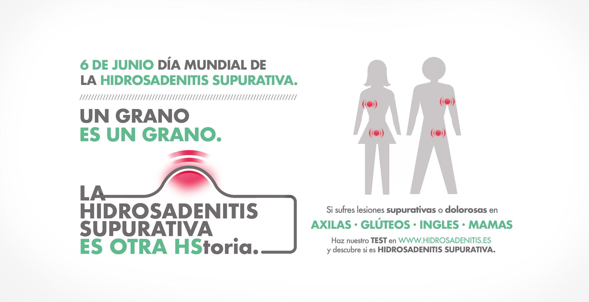 """""""Mi diagnóstico fue un nombre en un papel"""" El testimonio de Silvia Lobo con Hidrosadenitis"""